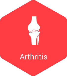 Arthritis - Learn More Here!